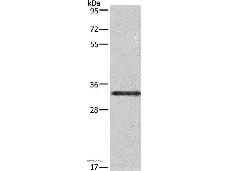 Western Blotting (WB) image for anti-Interleukin 1 alpha (IL1A) antibody (ABIN2428275)