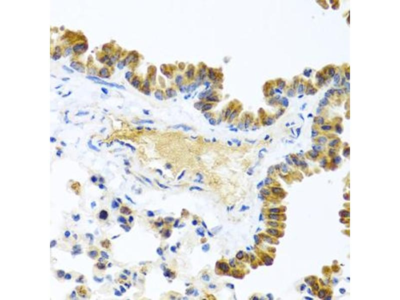 Immunohistochemistry (Paraffin-embedded Sections) (IHC (p)) image for anti-Wingless-Type MMTV Integration Site Family, Member 9A (WNT9A) antibody (ABIN3046621)