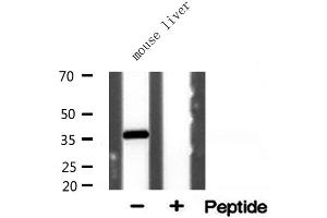 Image no. 3 for anti-Aldo-Keto Reductase Family 1, Member E2 (AKR1E2) antibody (ABIN6258684)