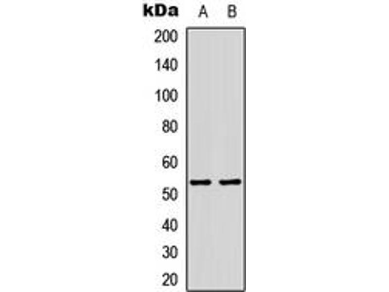Western Blotting (WB) image for anti-Tumor Protein P53 (TP53) (C-Term), (acLys386) antibody (ABIN2705096)