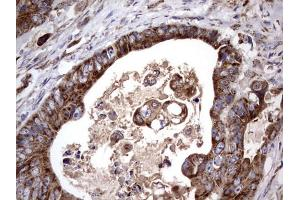 Image no. 4 for anti-Angiotensin I Converting Enzyme 2 (ACE2) (AA 18-237) antibody (ABIN2715650)