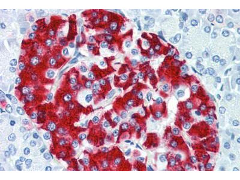 Immunohistochemistry (Paraffin-embedded Sections) (IHC (p)) image for anti-Insulin (INS) antibody (ABIN337249)