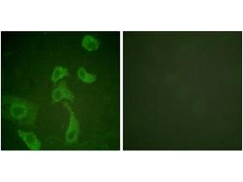 Immunofluorescence (IF) image for anti-Interleukin 2 Receptor, beta (IL2RB) (AA 331-380) antibody (ABIN1532688)