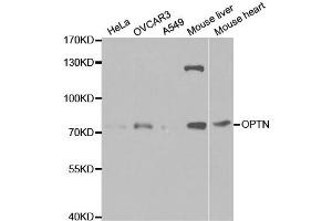 Western Blotting (WB) image for anti-Optineurin (OPTN) antibody (ABIN1874007)