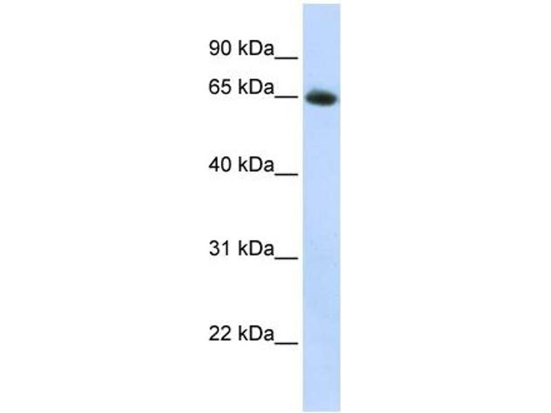 Western Blotting (WB) image for anti-Solute Carrier Family 2 (Facilitated Glucose Transporter), Member 4 (SLC2A4) (N-Term) antibody (ABIN2781558)