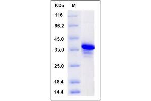 Image no. 1 for DPY30 Domain Containing 2 (DYDC2) (Mature), (AA 102-176) protein (GST tag) (ABIN2005972)