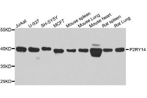 Image no. 1 for anti-Purinergic Receptor P2Y, G-Protein Coupled, 14 (P2RY14) antibody (ABIN6145126)