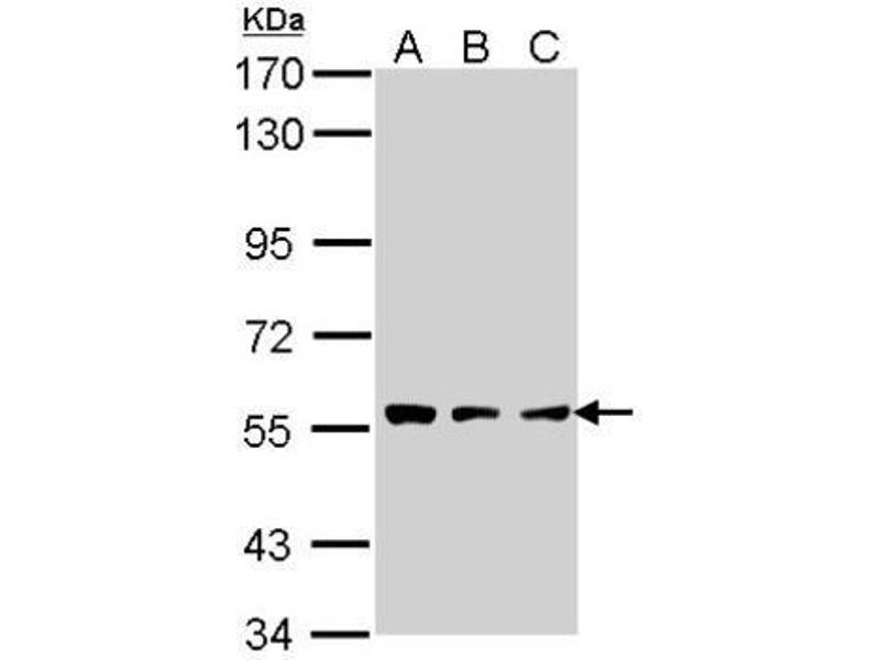Western Blotting (WB) image for anti-Tripeptidyl Peptidase I (TPP1) (Center) antibody (ABIN441750)