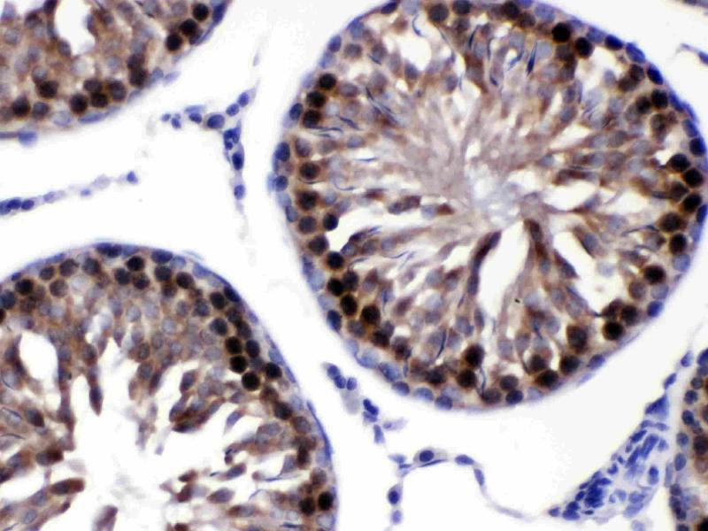 Immunohistochemistry (IHC) image for anti-Calcyclin Binding Protein (CACYBP) (AA 7-47), (N-Term) antibody (ABIN4886495)