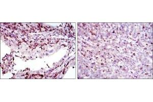 Immunohistochemistry (Paraffin-embedded Sections) (IHC (p)) image for anti-Adrenergic, Beta, Receptor Kinase 1 (ADRB1) antibody (ABIN4316203)