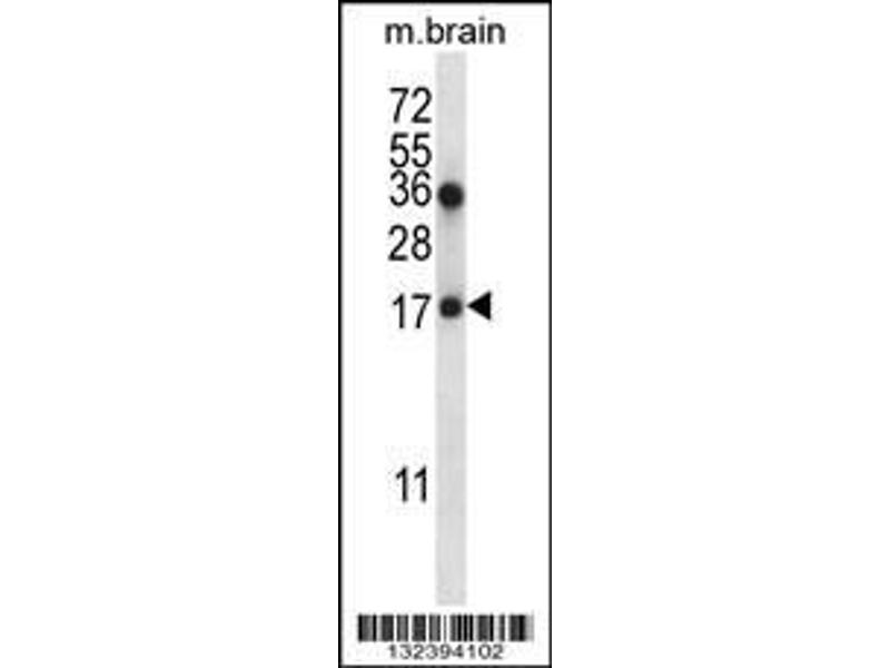 Western Blotting (WB) image for anti-Coatomer Protein Complex, Subunit zeta 1 (COPZ1) (AA 24-53), (N-Term) antibody (ABIN657051)