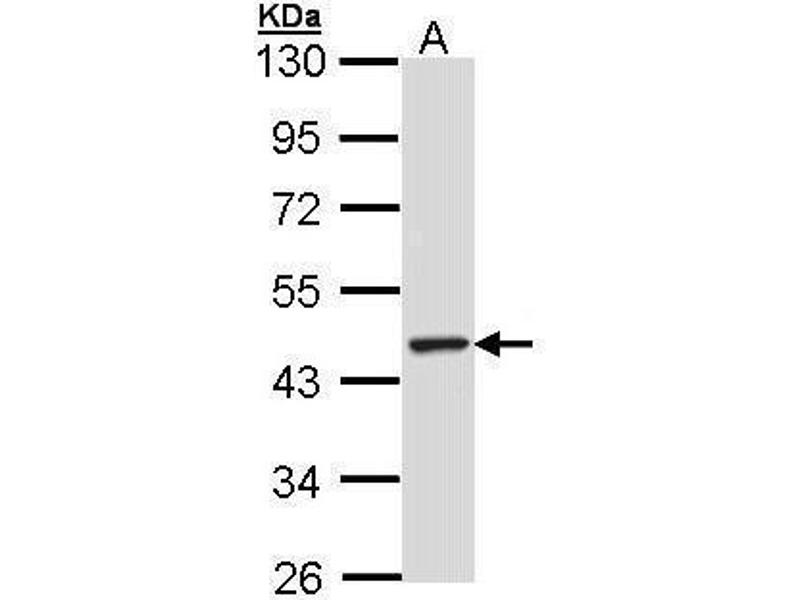 Western Blotting (WB) image for anti-Tubby Like Protein 3 (TULP3) (Center) antibody (ABIN2856010)