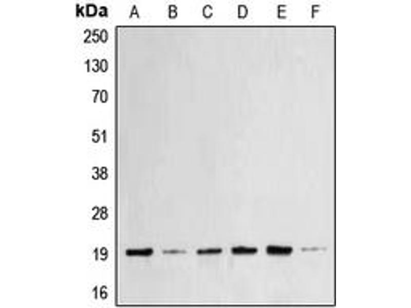 Western Blotting (WB) image for anti-BCL2-Associated X Protein (BAX) (N-Term) antibody (ABIN2707357)