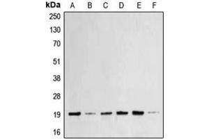 Image no. 2 for anti-BCL2-Associated X Protein (BAX) (N-Term) antibody (ABIN2707357)