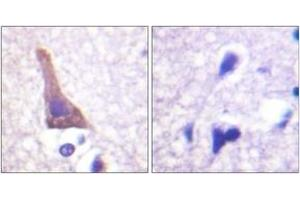 Image no. 2 for anti-Adrenergic, beta-2-, Receptor, Surface (ADRB2) (AA 321-370), (pSer346) antibody (ABIN1531704)