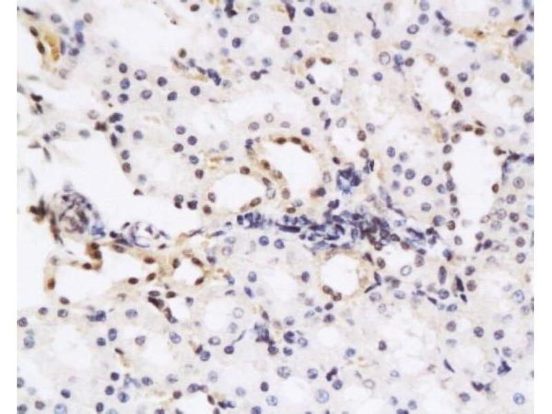Immunohistochemistry (Paraffin-embedded Sections) (IHC (p)) image for anti-HGF antibody (Hepatocyte Growth Factor (Hepapoietin A, Scatter Factor)) (AA 210-260) (ABIN736551)