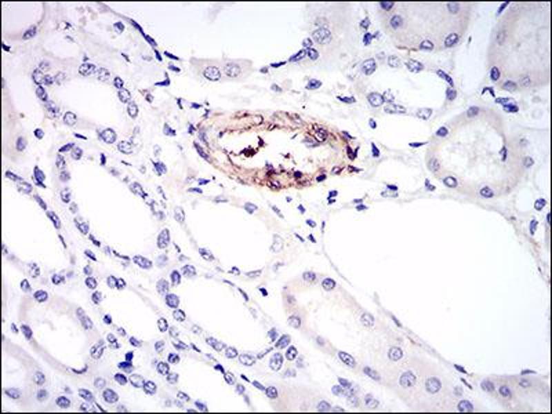 Image no. 1 for anti-Melanoma Cell Adhesion Molecule (MCAM) (AA 84-189) antibody (ABIN1724898)