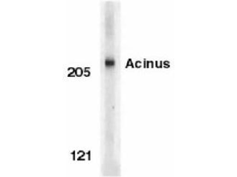image for anti-ACIN1 antibody (Apoptotic Chromatin Condensation Inducer 1) (ABIN319023)