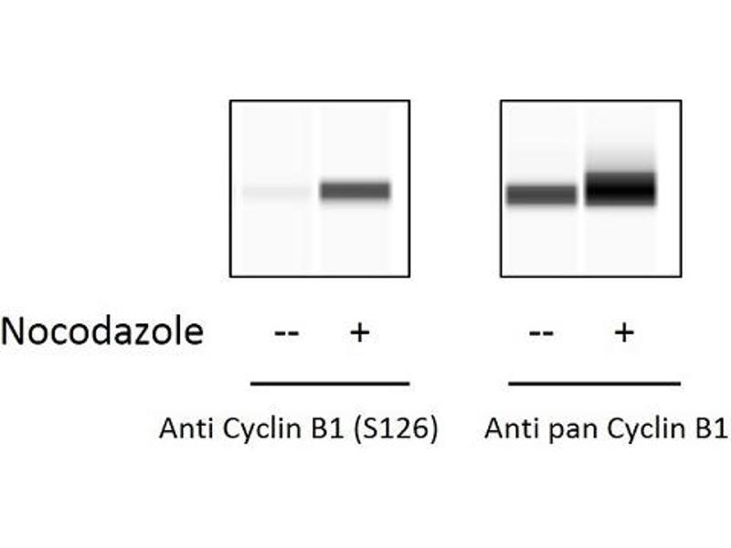 Cyclin B1 (CCNB1) ELISA Kit (3)