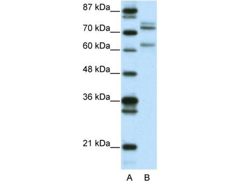 Western Blotting (WB) image for anti-GATA Zinc Finger Domain Containing 2B (GATAD2B) (N-Term) antibody (ABIN182715)