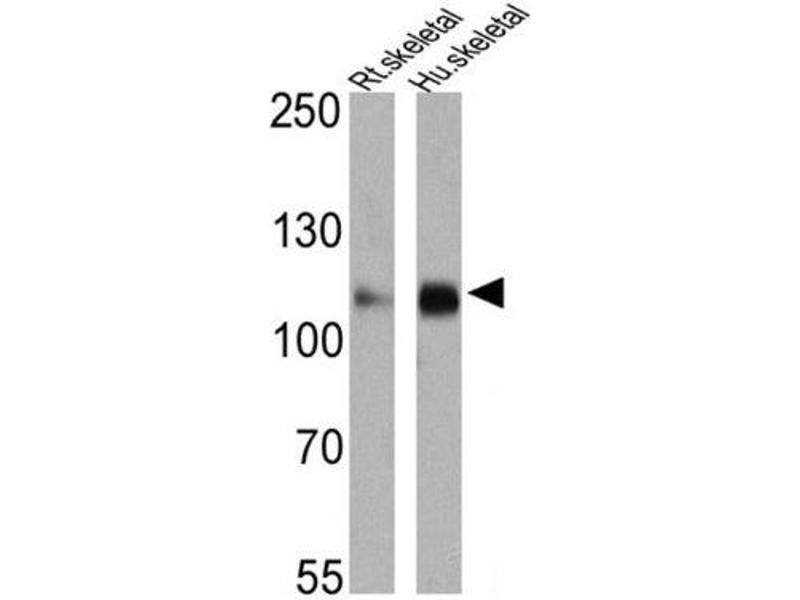 Western Blotting (WB) image for anti-ATPase, Ca++ Transporting, Cardiac Muscle, Slow Twitch 2 (ATP2A2) antibody (ABIN152688)
