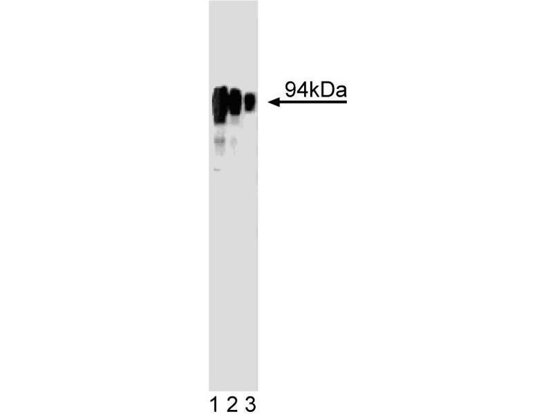 Western Blotting (WB) image for anti-Nuclear Receptor Subfamily 3, Group C, Member 1 (Glucocorticoid Receptor) (NR3C1) (AA 176-289) antibody (ABIN968431)