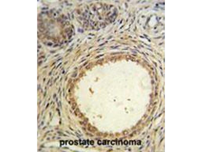 Immunohistochemistry (Paraffin-embedded Sections) (IHC (p)) image for anti-Anti-Mullerian Hormone (AMH) (AA 430-460), (Middle Region) antibody (ABIN950438)
