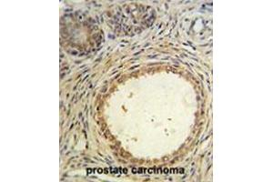Image no. 1 for anti-Anti-Mullerian Hormone (AMH) (AA 430-460), (Middle Region) antibody (ABIN950438)