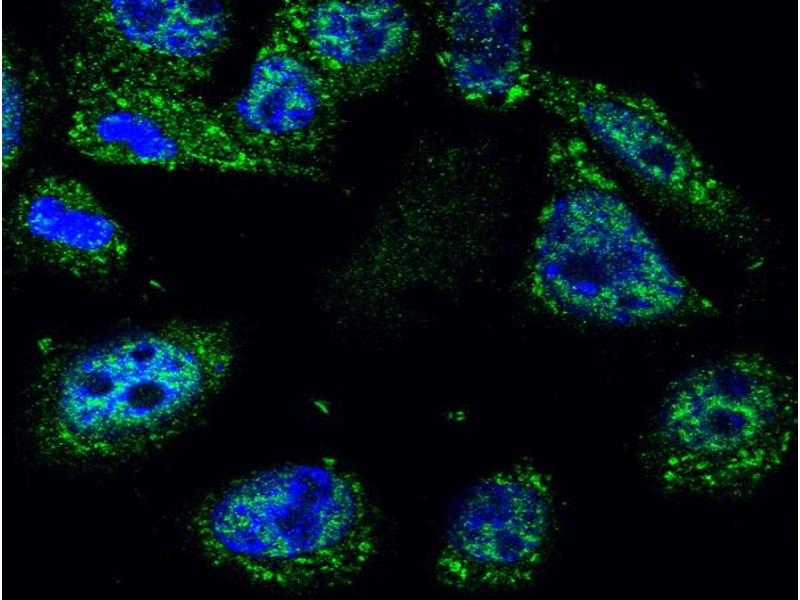 Immunofluorescence (IF) image for anti-Tumor Protein P53 (TP53) (AA 240-290), (Wild Type) antibody (ABIN723935)