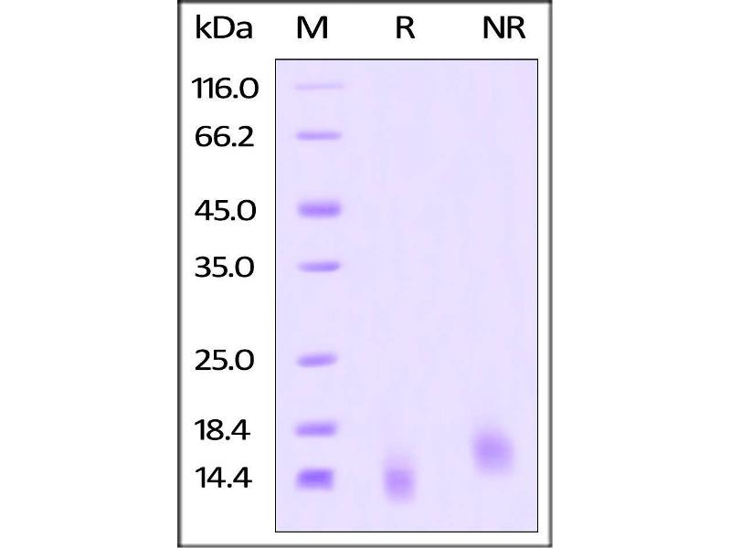 SDS-PAGE (SDS) image for Tumor Necrosis Factor Receptor Superfamily, Member 17 (TNFRSF17) (AA 1-54) (Active) protein (His tag) (ABIN4949075)
