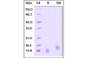 Image no. 1 for Tumor Necrosis Factor Receptor Superfamily, Member 17 (TNFRSF17) (AA 1-54) (Active) protein (His tag) (ABIN4949075)