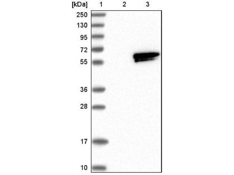 Western Blotting (WB) image for anti-RasGEF Domain Family, Member 1A (RASGEF1A) antibody (ABIN4349411)