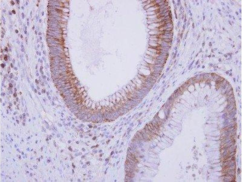 Immunohistochemistry (Paraffin-embedded Sections) (IHC (p)) image for anti-C9 antibody (Complement Component C9) (Center) (ABIN4299958)