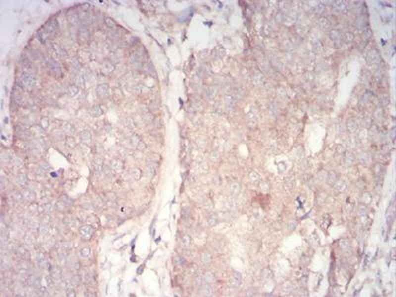 Immunohistochemistry (IHC) image for anti-PDPK1 antibody (3-phosphoinositide Dependent Protein Kinase-1) (AA 457-556) (ABIN5542259)