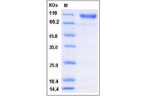 Image no. 1 for Sema Domain, Immunoglobulin Domain (Ig), Transmembrane Domain (TM) and Short Cytoplasmic Domain, (Semaphorin) 4D (SEMA4D) (AA 1-734), (Extracellular Domain) (Active) protein (His tag) (ABIN2004808)