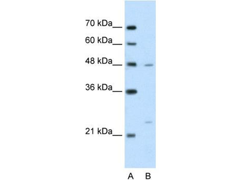 Western Blotting (WB) image for anti-BSDC1 antibody (BSD Domain Containing 1) (N-Term) (ABIN310356)