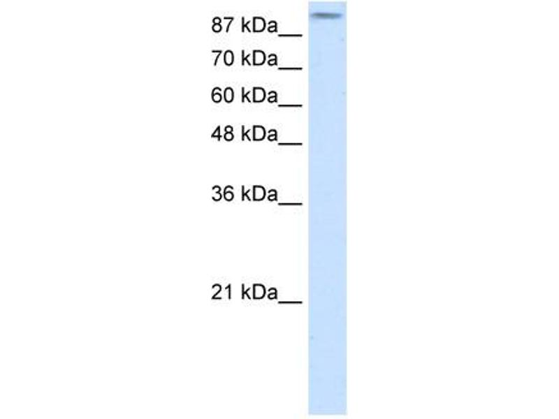 Western Blotting (WB) image for anti-GRIA2 antibody (Glutamate Receptor, Ionotropic, AMPA 2) (N-Term) (ABIN2792269)