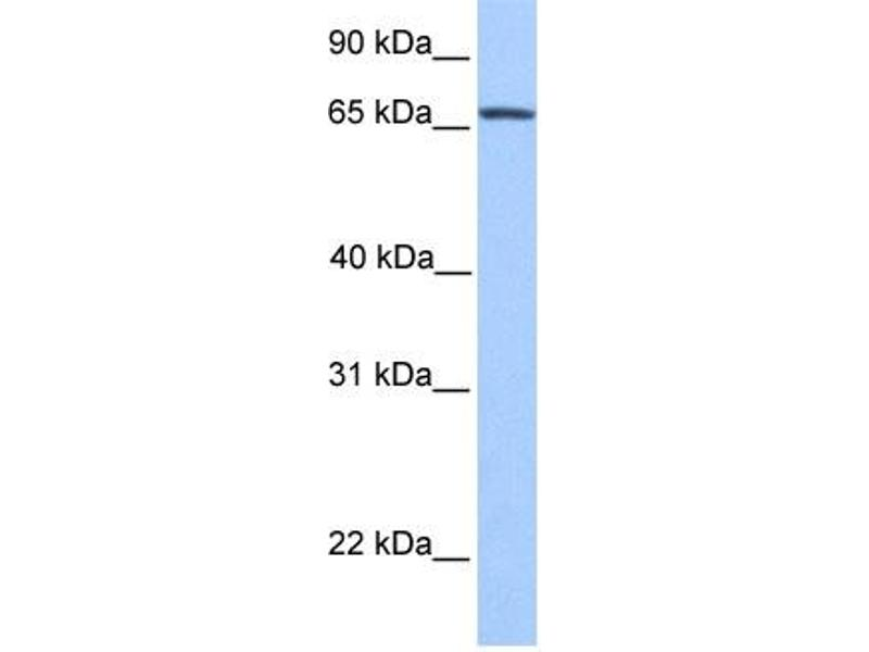 Western Blotting (WB) image for anti-Nuclear Receptor Subfamily 4, Group A, Member 2 (NR4A2) (N-Term) antibody (ABIN2780752)