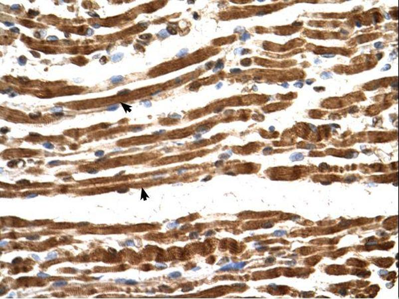 Immunohistochemistry (IHC) image for anti-N(alpha)-Acetyltransferase 16, NatA Auxiliary Subunit (NAA16) (Middle Region) antibody (ABIN311101)