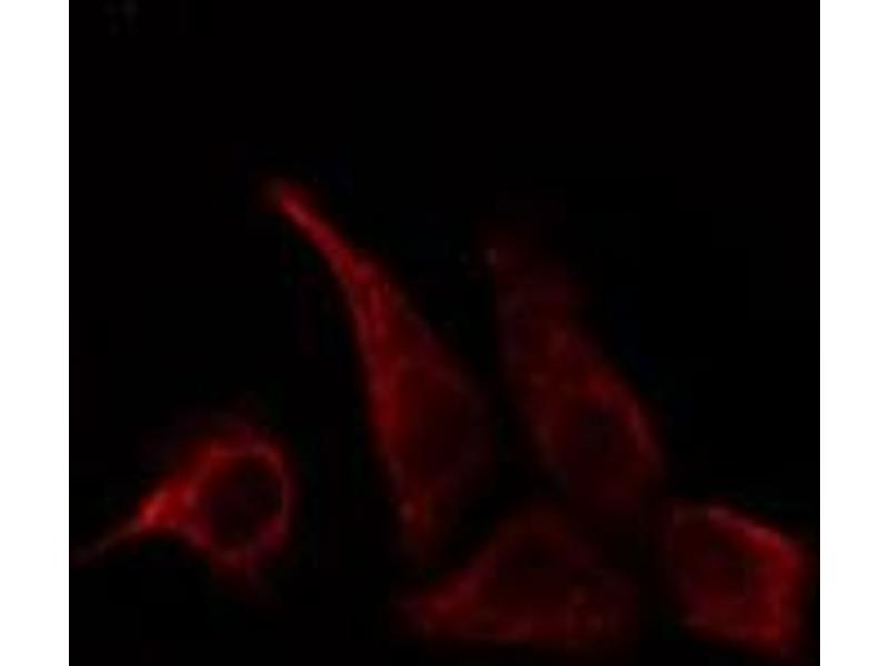 Immunofluorescence (fixed cells) (IF/ICC) image for anti-CD28 (CD28) (pTyr218) antibody (ABIN6255852)