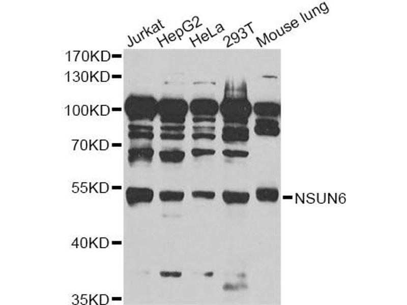 Image no. 1 for anti-NOP2/Sun Domain Family, Member 6 (NSUN6) antibody (ABIN6567974)