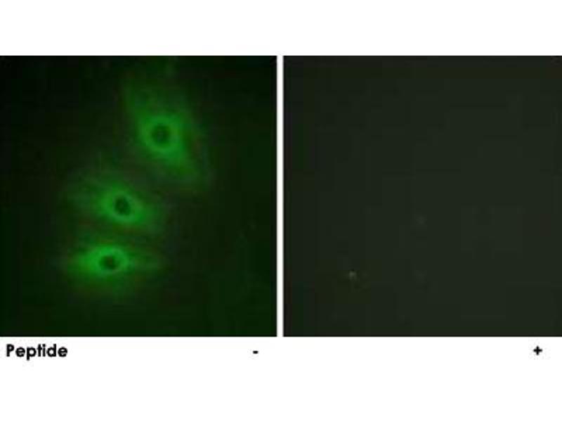Immunofluorescence (IF) image for anti-Adenylate Cyclase 5 (ADCY5) antibody (ABIN5572035)