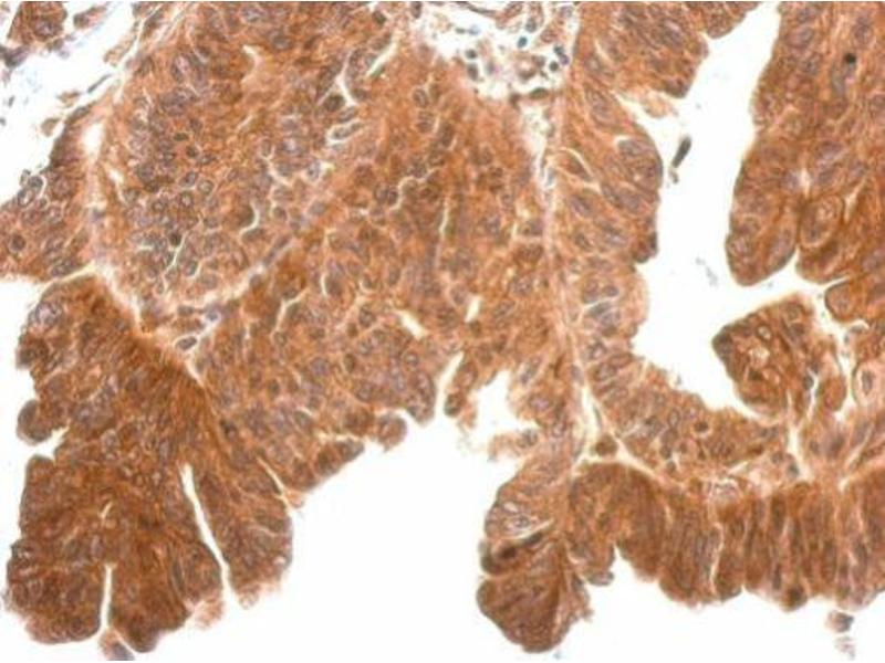 Immunohistochemistry (IHC) image for anti-Kallikrein 11 antibody (KLK11) (Center) (ABIN2855789)
