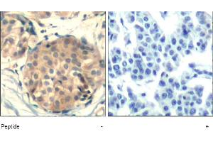 image for anti-Mast/stem Cell Growth Factor Receptor (KIT) (AA 934-938) antibody (ABIN401647)