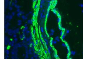 Image no. 3 for anti-ACTG2 antibody (Actin, gamma 2, Smooth Muscle, Enteric) (ABIN335206)