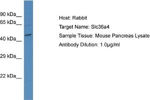 Image no. 1 for anti-Solute Carrier Family 36 (Proton/amino Acid Symporter), Member 4 (SLC36A4) (N-Term) antibody (ABIN2781722)