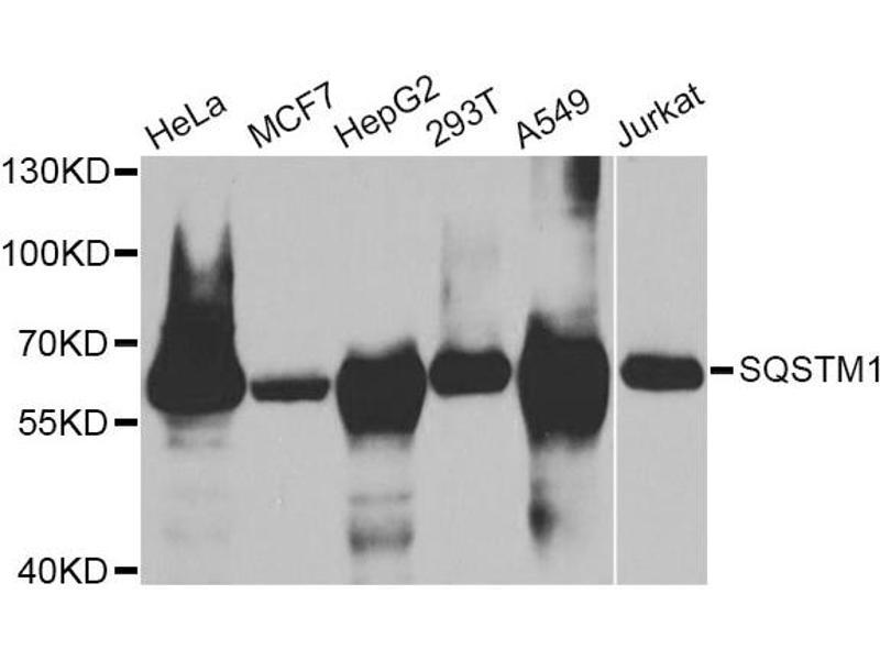 Western Blotting (WB) image for anti-Sequestosome 1 (SQSTM1) antibody (ABIN5970256)