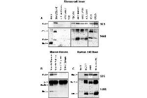 Western Blotting (WB) image for anti-BIM antibody (BCL2-Like 11 (Apoptosis Facilitator)) (ABIN187550)