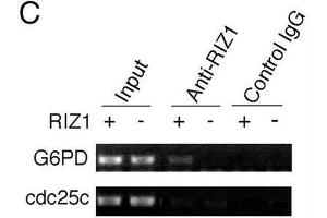 Image no. 3 for anti-PR Domain Containing 2, with ZNF Domain (PRDM2) antibody (ABIN2995299)