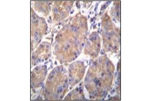 Immunohistochemistry (Paraffin-embedded Sections) (IHC (p)) image for anti-Heat Shock Protein 90kDa beta (Grp94), Member 1 (HSP90B1) (AA 467-495), (Middle Region) antibody (ABIN952082)